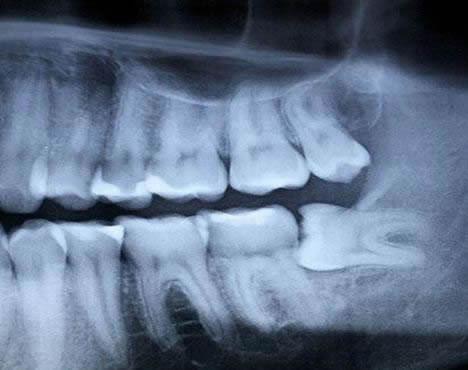 Wisdom Teeth Extractions Potomac Family Dental In Lake Ridge Va