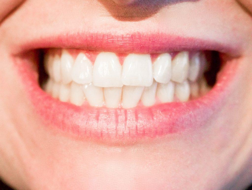 Teeth grinding - Potomac Family Dental