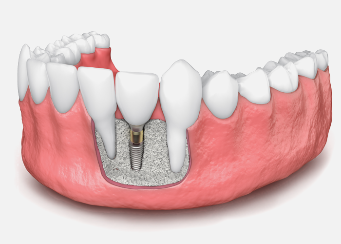 bone grafts dental implants